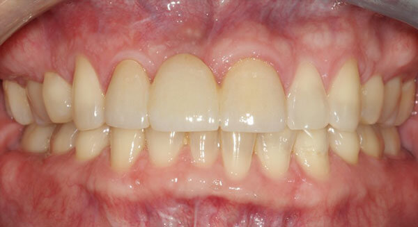 Cosmetic Dentistry After Photo - Face