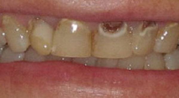 Cosmetic Dentistry Before Photo - Face