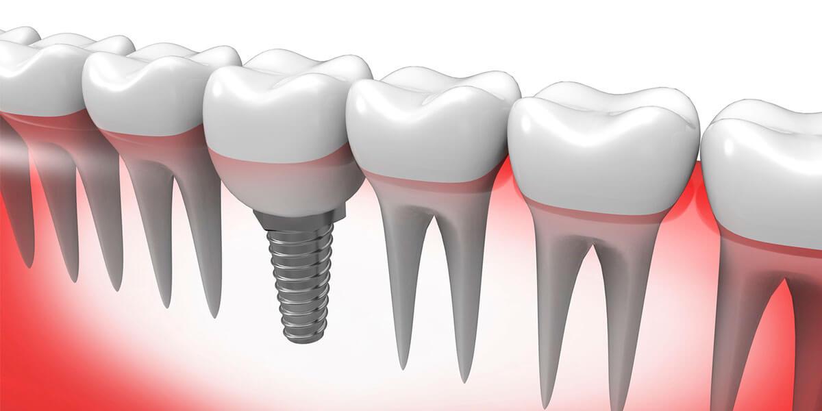 Graphic of Implant