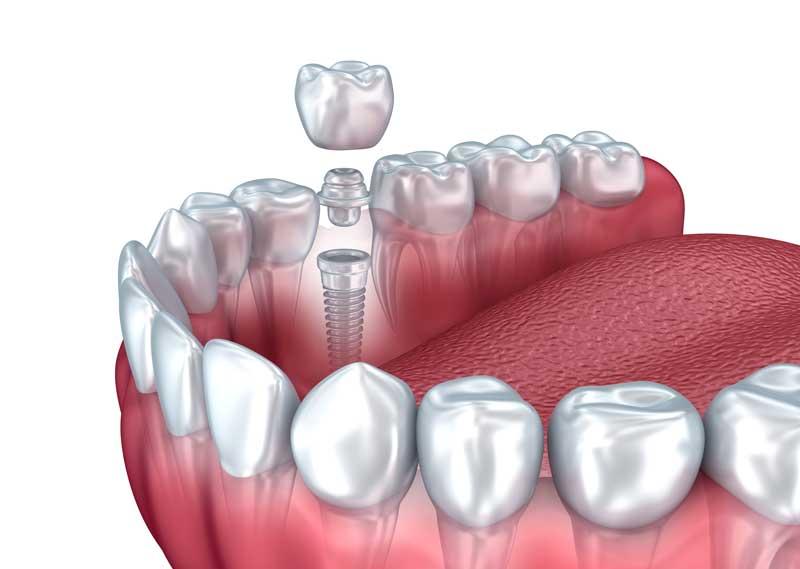 Mini Dental Implants (MDIs)